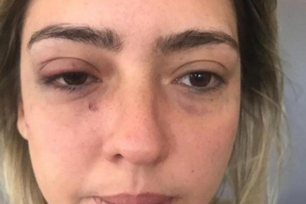 Escritório de advocacia repudia agressão a ex-namorada de prefeito e diz que tomará medidas legais